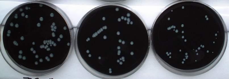 一些特殊细菌在特殊培养基上的形态