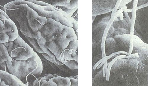 小肠上附着的微生物.jpg