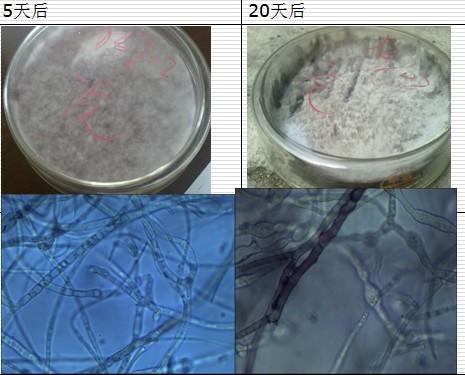 急求高手指教鉴定霉菌显微镜照片 谢谢