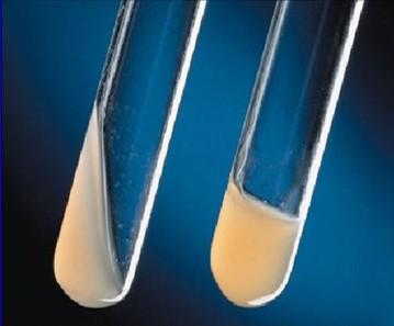 血浆凝固酶实验 金葡.jpg
